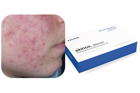 Tratamiento para pieles con acné