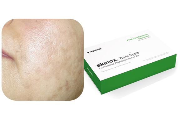 Tratamiento para pieles con melasma
