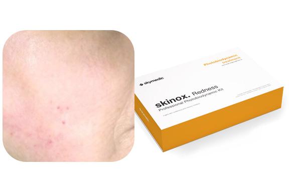 Tratamiento para pieles con rosácea