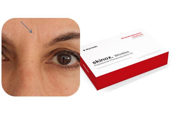 Tratamiento para pieles con fotoenvejecimiento